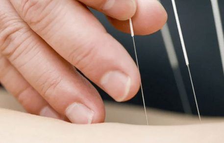 What Conditions Can Be Treated With Dry Needling
